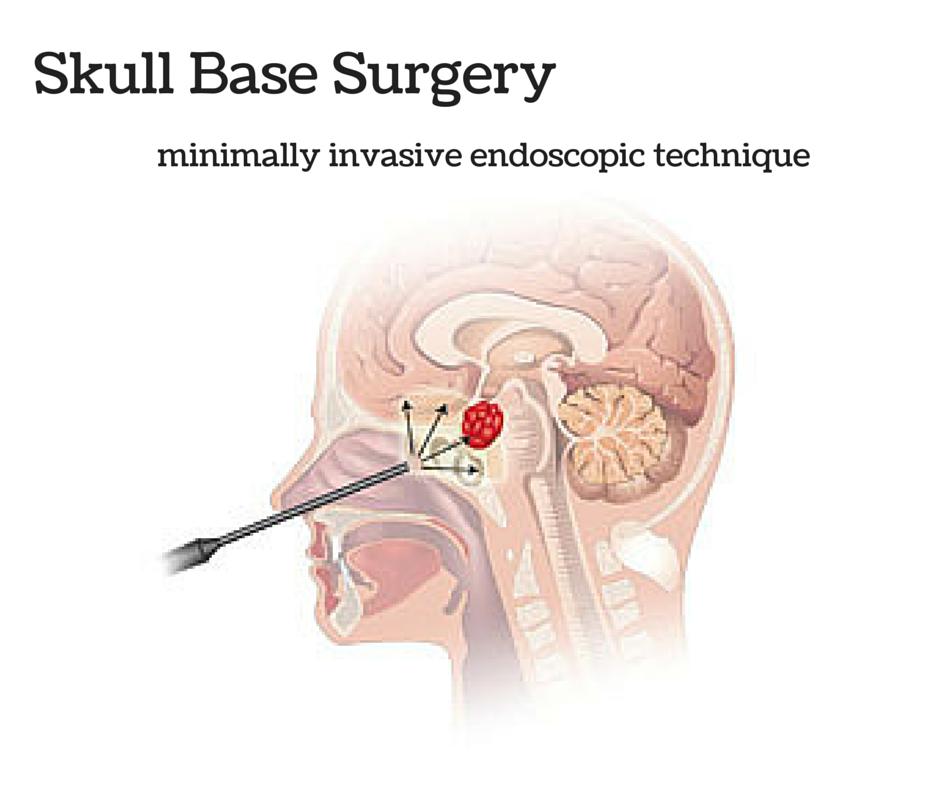 Skull-Base-Surgery.png
